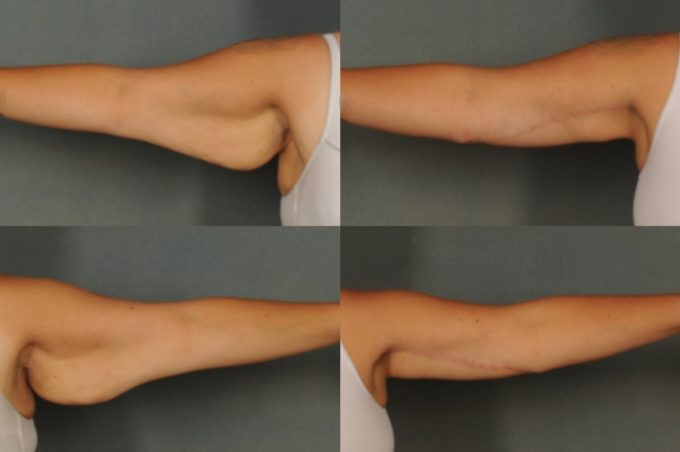 Scars From Upper Arm Lifts : Arm lift surgery in troy brachioplasty near bloomfield