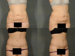 Tummy Tuck with Dr. Ellen in Bloomfield Hills, Michigan.