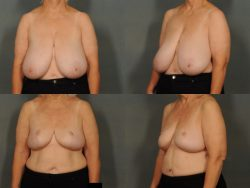 Breast lift by Dr. Ellen in Bloomfield Hills, MI