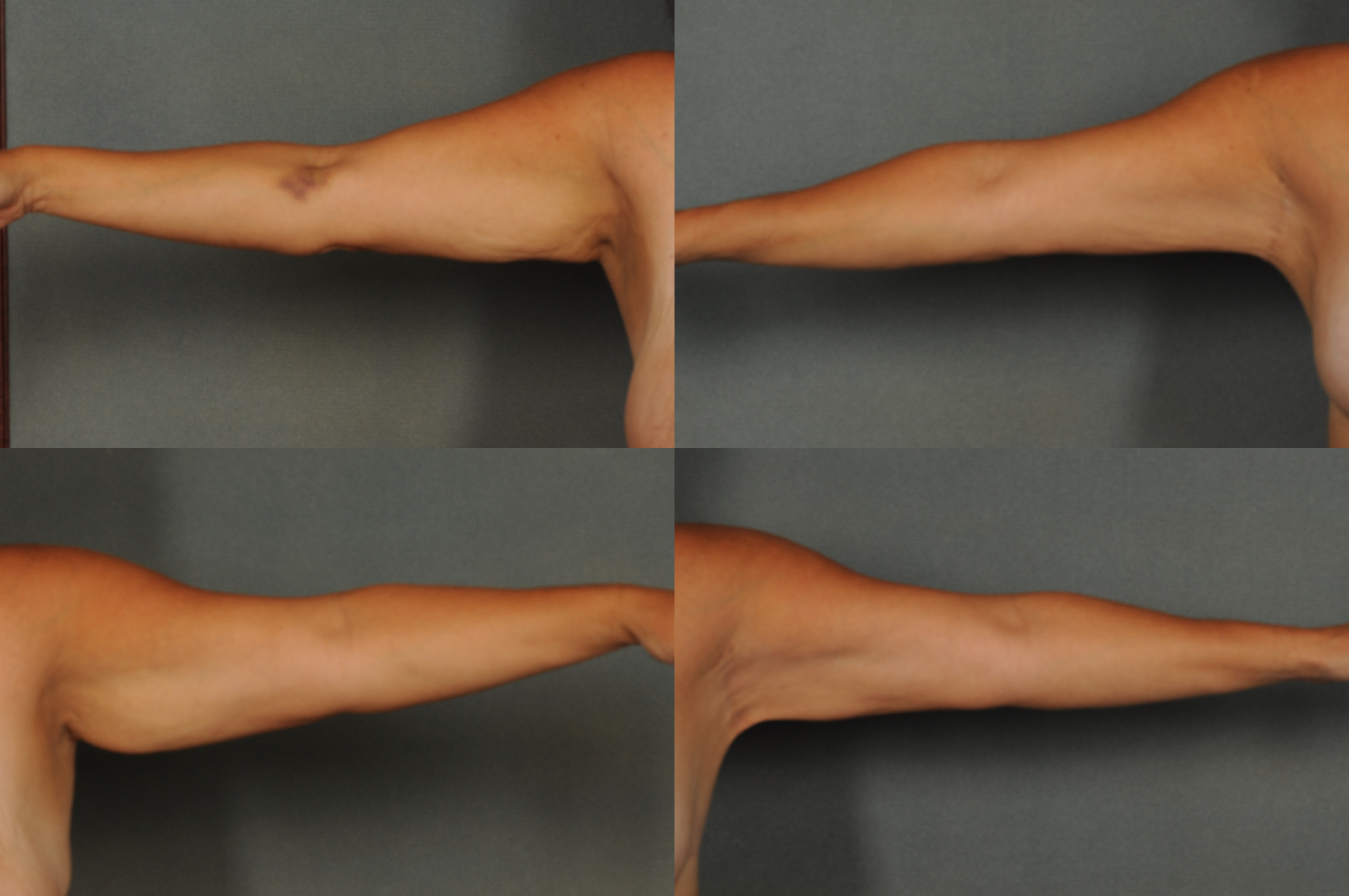 Arm Lift with Dr. Ellen, in Bloomfield Hills, MI